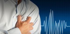 arritmia-cardiaca