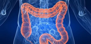 cancer-colon