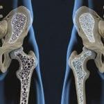 Osteoporosis: ¿Cómo mejorar la salud de los huesos?